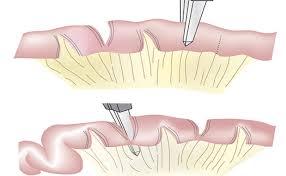 Ảnh 1 của Hội chứng ruột ngắn