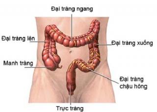 Ảnh 2 của Hội chứng ruột ngắn