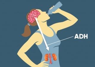 Ảnh 4 của Hội chứng tiết hormone chống lợi tiểu bất hợp lý
