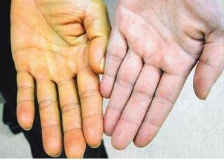Ảnh 4 của Hội chứng Mirizzi