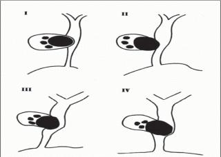 Ảnh 1 của Hội chứng Mirizzi