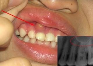Ảnh 4 của U răng