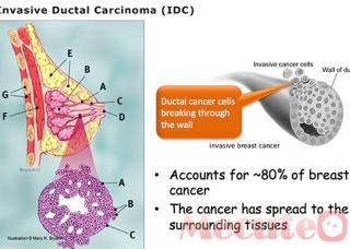 Ảnh 4 của Ung thư biểu mô tiểu thùy xâm lấn