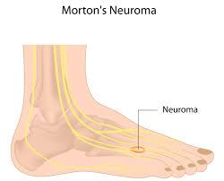 Ảnh 2 của U dây thần kinh Morton