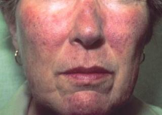 Ảnh 1 của Hội chứng Carcinoid