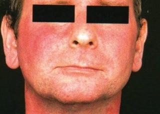 Ảnh 3 của Hội chứng Carcinoid