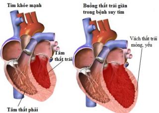 Ảnh 1 của Hội chứng suy tim trái