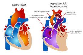 Ảnh 1 của Hội chứng thiểu sản tim trái