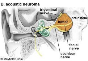 Ảnh 3 của U dây thần kinh thính giác
