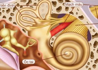 Ảnh 4 của U dây thần kinh thính giác