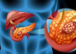 Ảnh 1 của Ung thư tuyến tụy