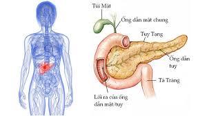 Ảnh 3 của Ung thư tuyến tụy