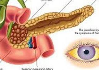 Ảnh 4 của Ung thư tuyến tụy