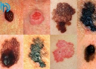 Ảnh 1 của Ung thư biểu mô tế bào đáy (BCC)