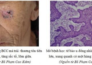Ảnh 3 của Ung thư biểu mô tế bào đáy (BCC)