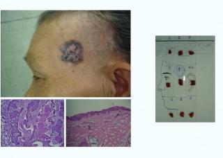 Ảnh 4 của Ung thư biểu mô tế bào đáy (BCC)