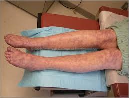 Ảnh 1 của Hội chứng kháng thể kháng phospholipid