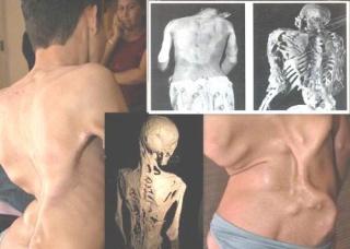 Ảnh 1 của Hội chứng người hóa đá