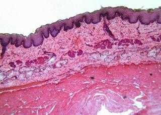 Ảnh 2 của Ung thư biểu mô tế bào vảy