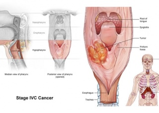 Ảnh 2 của Ung thư hạ hầu