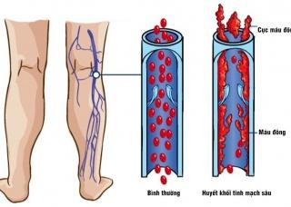 Ảnh 1 của Huyết khối tĩnh mạch sâu
