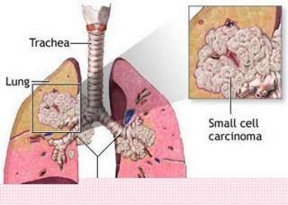 Ảnh 1 của Ung thư phổi tế bào nhỏ (SCLC)
