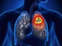 Ảnh 4 của Ung thư phổi tế bào nhỏ (SCLC)