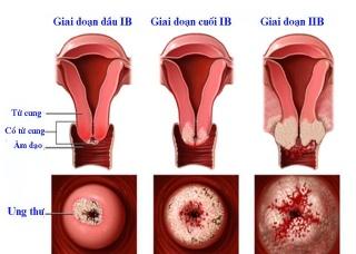 Ảnh 2 của Ung thư tử cung