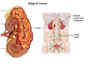 Ảnh 4 của Ung thư thận
