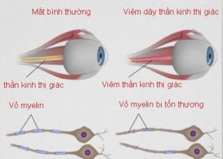 Ảnh 1 của Viêm dây thần kinh thị giác