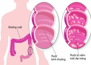Ảnh 3 của Viêm đại tràng vi thể