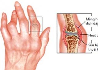 Ảnh 1 của Viêm khớp ngón tay