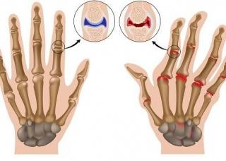 Ảnh 3 của Viêm khớp ngón tay