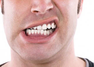 Ảnh 3 của Nghiến răng