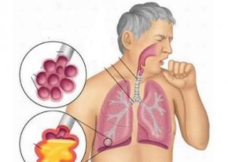 Ảnh 1 của Nhiễm trùng đường hô hấp trên