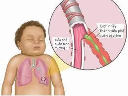 Ảnh 2 của Nhiễm trùng đường hô hấp trên