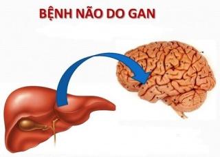 Ảnh 1 của Não gan