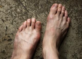Ảnh 3 của Ngón chân hình búa