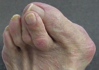 Ảnh 4 của Ngón chân hình búa