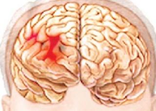Ảnh 2 của Nhũn não