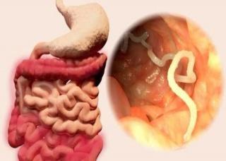 Ảnh 2 của Nhiễm kí sinh trùng đường ruột qua thức ăn