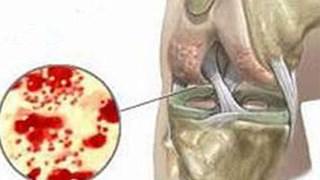 Ảnh 1 của Viêm khớp nhiễm trùng sinh mủ
