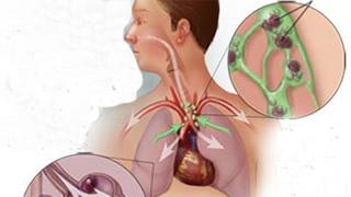 Ảnh 1 của Viêm phổi do nấm