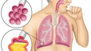 Ảnh 2 của Viêm phổi do nấm
