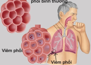 Ảnh 4 của Viêm phổi do nấm