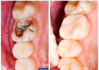 Ảnh 3 của Viêm tủy răng