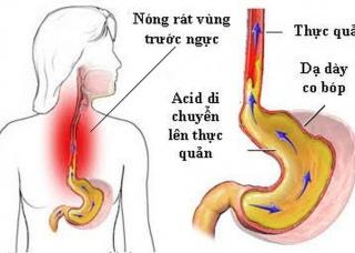 Ảnh 1 của Trào ngược dạ dày thực quản