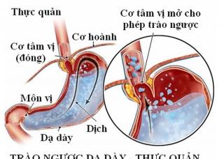 Ảnh 2 của Trào ngược dạ dày thực quản