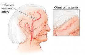 Ảnh 4 của Viêm động mạch tế bào khổng lồ