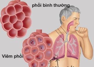 Ảnh 1 của Viêm phổi bệnh viện